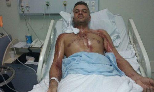 Motociclista se recupera após ser atingido por um raio em Jaguaruna